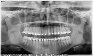 OWANDY Radiology-P912Pr-2016.04.05-08.00.18